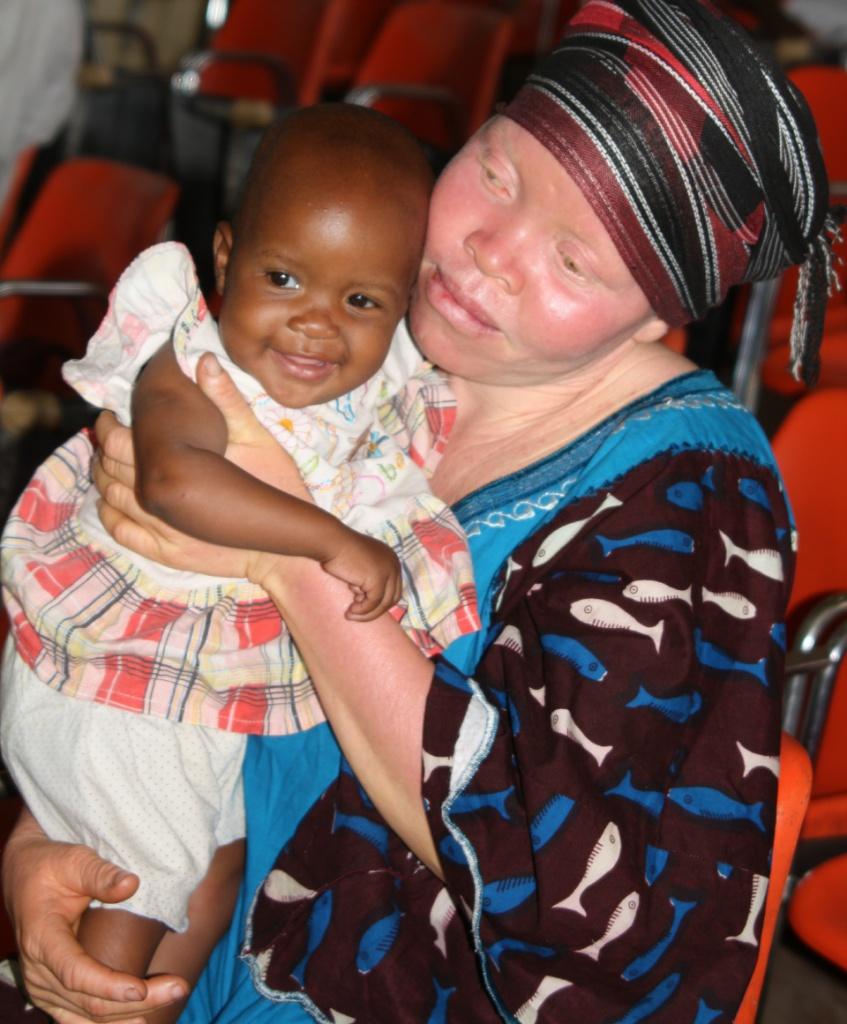 Femme atteinte d'albinisme avec sa petite fille. Nathalie, membre de la rédaction neuchâteloise de Voix d'Exils